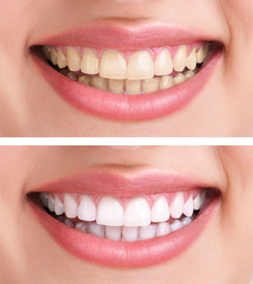 blanchiment dentaire avant après