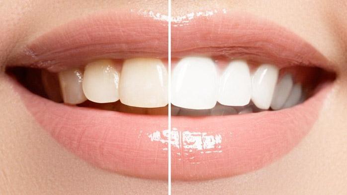 clinique-dr-karam-blanchiment-dentaire-2