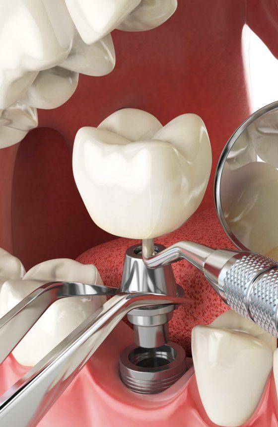 clinique-dentaire-dr-karam-couronnes