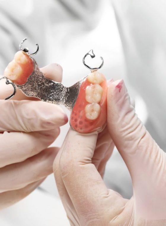 Prothèses Dentaires partielles
